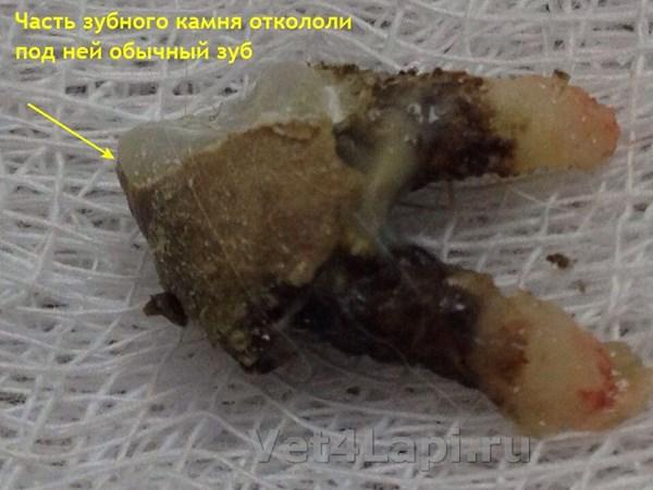 zubnoy-kamen